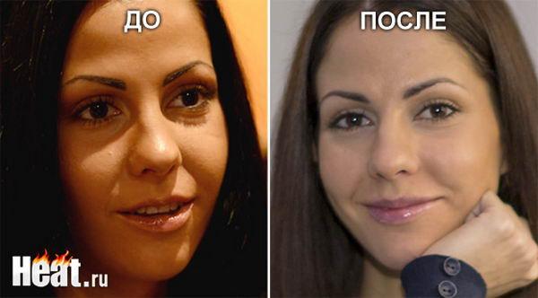 Елена Беркова сделала пластическую операцию